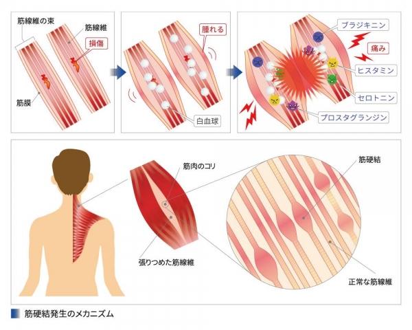 筋肉 痛 メカニズム